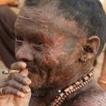"""(الرجل الأفعى) يبدل جلده كل 10 أيام """"صورة"""""""